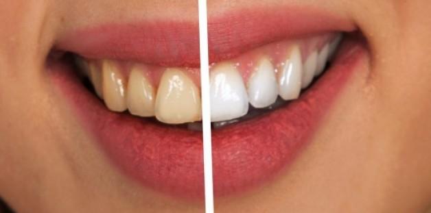 Sete Perguntas Sobre Clareamento Dental Respondidas Noticias